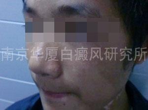 17岁镇江男孩的抗白旅途